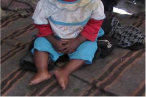 A malnourished child in the slum